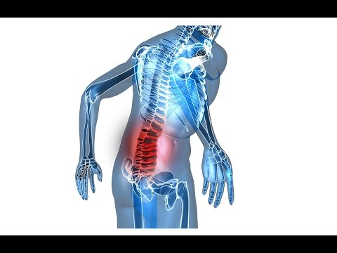 Video What To Do When You Strain Your Lower Back