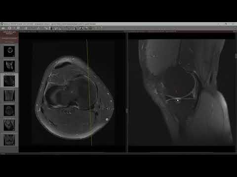 Împotriva artritei articulațiilor