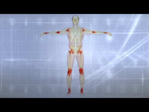 Video Joint Pain|Causes|Treatment|Prevention