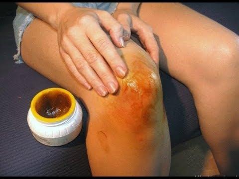 Боль в левом плечевом суставе при отведении руки в сторону