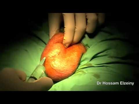 Китайский препарат от аденомы предстательной железы