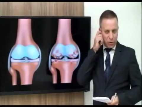 Artroza boala articulației piciorului
