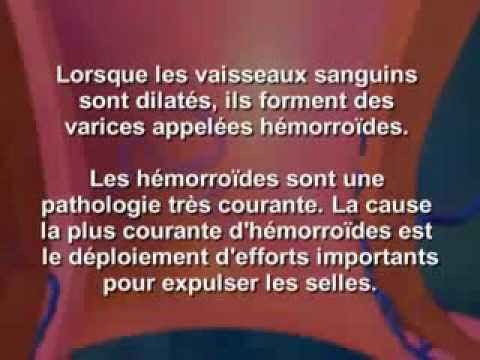 Hormone cancer de la prostate thérapie Zoladex