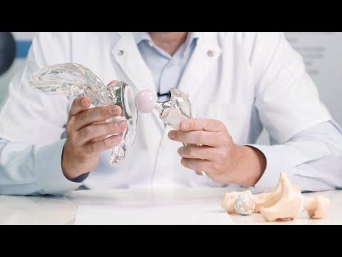 Alergând cu artroza articulației șoldului