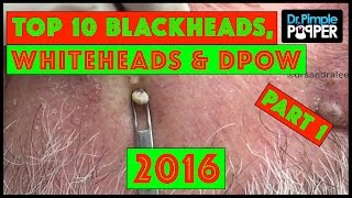 My Top 10 BEST Blackheads, Whiteheads & Dilated Pores of Winer of 2016! | Part 1