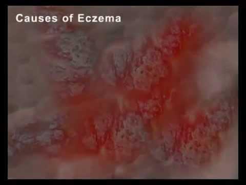 Medicine di eczema venose