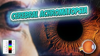 Cerebral achromatopsia - Your EYEBALLS - EYNTK 👁️💉😳💊🔊💯✅