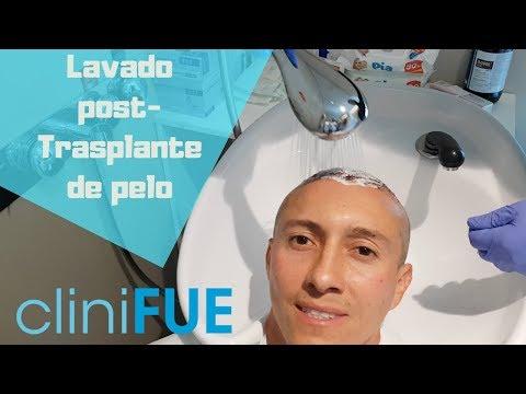 Guia de lavado cliniFUE