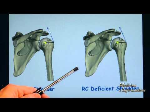 Un dolore sordo nella parte bassa della schiena e le gambe