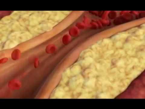 Duboko disanje hipertenzija