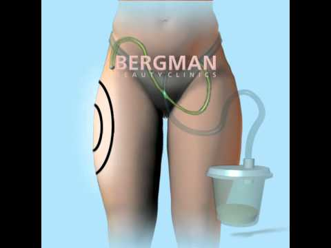 Liposuction animation