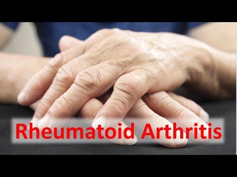 Wundes Schultergelenk der linken Hand mit Handbewegung