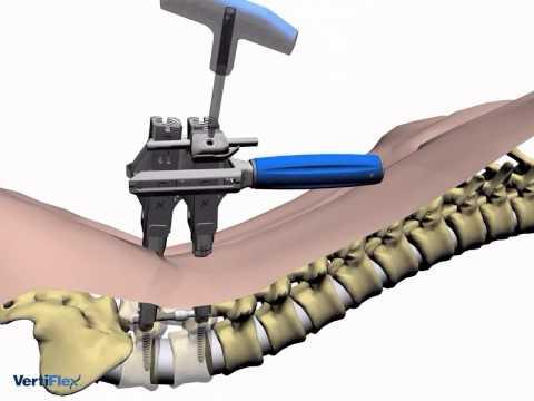 Volksmedizin Behandlung von Gelenkschmerzen beim Gehen
