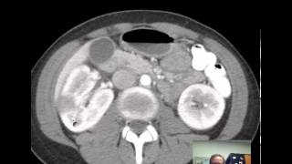 CT Kidneys and Bladder - Five pathologic cases discussed