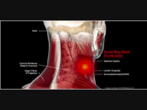 Metastatico colonna vertebrale toracica