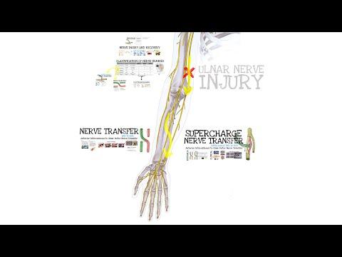 Przeniesienie (transfer) nerwu koniec do boku metodą Supercharge