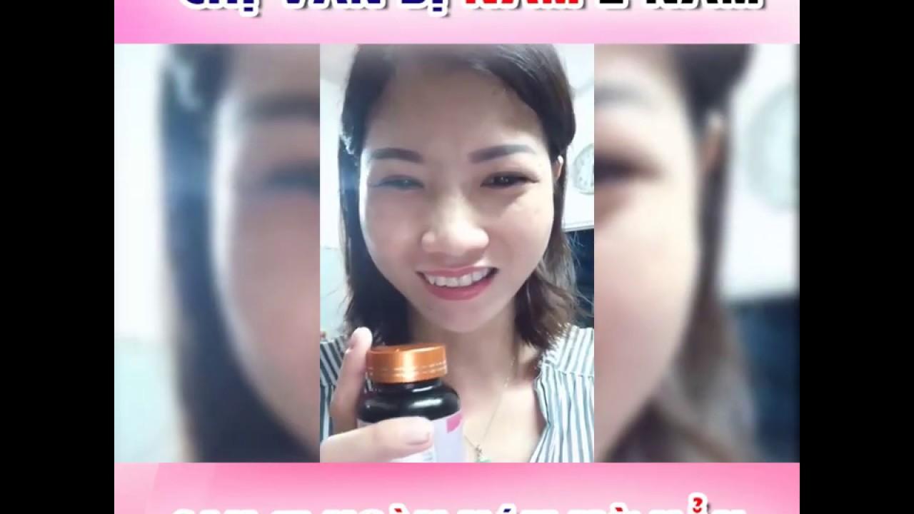 Chị Vân, 39 tuổi bị nám 2 năm đã mờ đi 80% sau 15 ngày