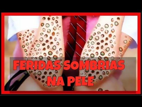 Eczema seco entre tratamento de dedos