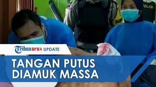 Curi Celana Dalam Mantan Istri untuk Diguna-guna, Pria di Lombok Diamuk Massa hingga Tangan Putus