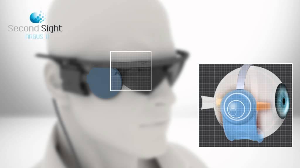 maxresdefault - Neuralink Илона Маска. Часть четвертая: нейрокомпьютерные интерфейсы
