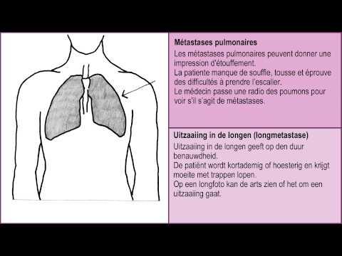 La sécrétion de la prostate Staphylococcus aureus