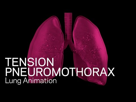 Tension Pneumothorax - Medical Animation