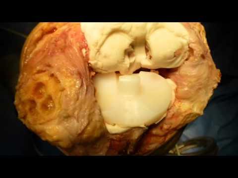 Operationen an der Halswirbelsäule Hernie