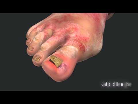 Come rapidamente guarire un fungo di gambe e rimedi di gente di unghie