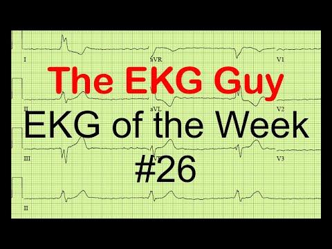 EKG of the Week #26