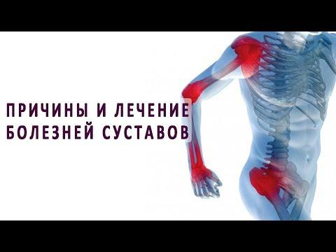 Основные причины заболеваний суставов и методы их лечения