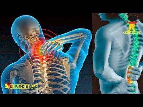 20 Jahre alt zervikale Osteochondrose
