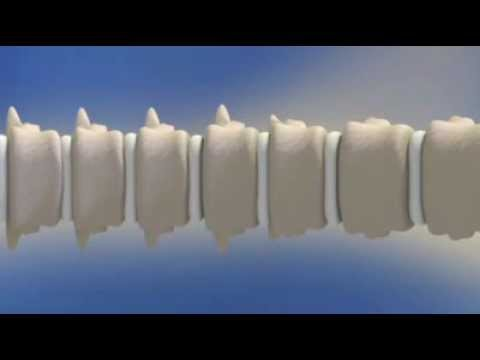 Trattamento di rimedi popolari rottura dei legamenti della spalla