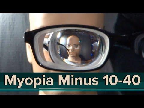 Milyen gomba javítja a látást 7 betű