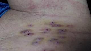 Гирудотерапия. Следы после постановки пиявок при аппендиците. 1.07.2017 г. /ч.2 комментарий
