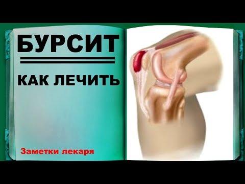 Лечение бурсита  Как я избавился от бурсита . Заметки Лекаря