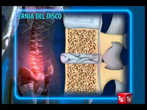 Pizzicare il trattamento della colonna vertebrale cervicale