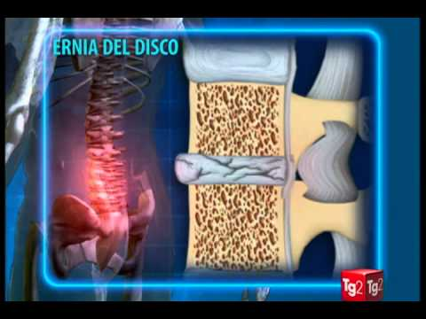 Spalla artrosi, artrite CIM 10