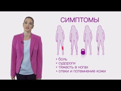 Die Phlebothrombose des Unterschenkels nach mkb 10