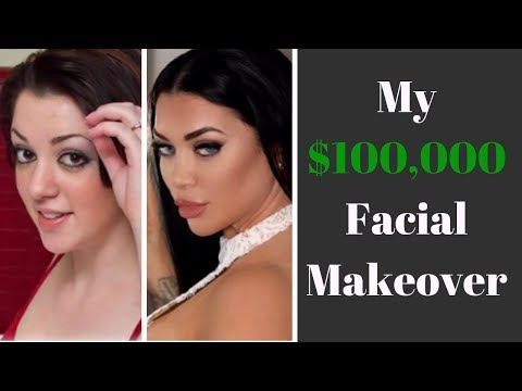 I Got $100,000 In Facial Plastic Surgery