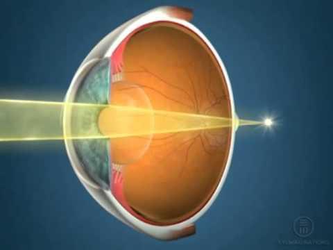 mi szükséges a látásműtéthez)
