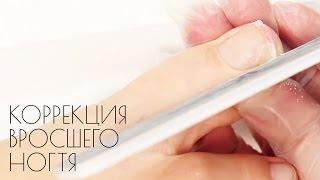 Смотреть онлайн Что делать с вросшим ногтем