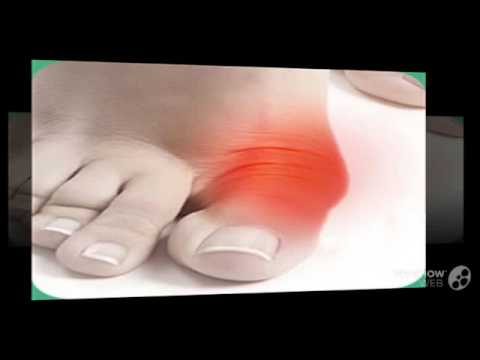 Как свести шишку на большом пальце ноги