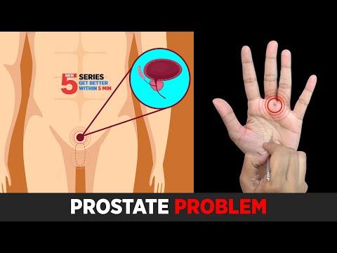 Prostatitis fekélyek