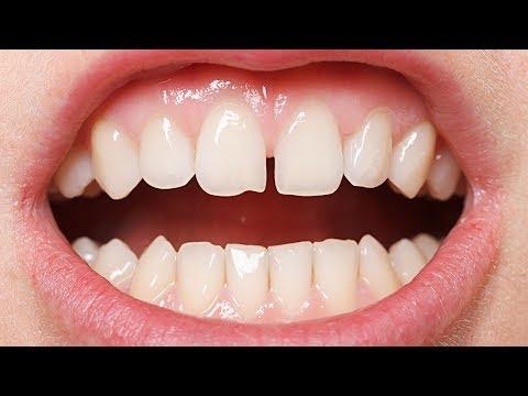 О чём говорит эта щербинка между зубами?