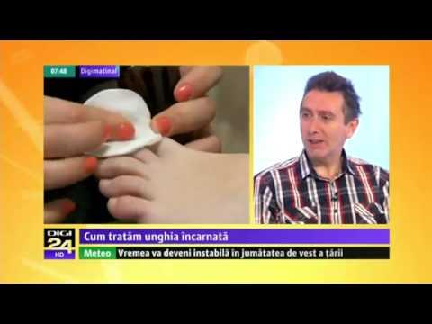 Medicament glicozamină condroitină Preț