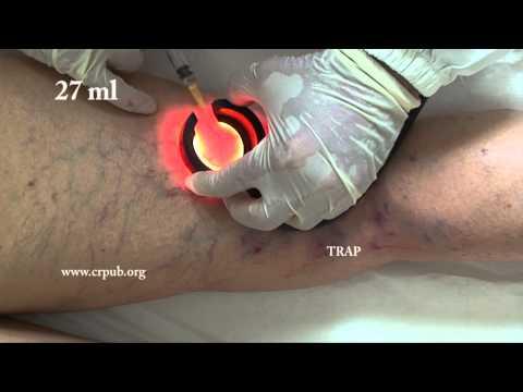 Comme appliquer lhuile volatile à la varicosité