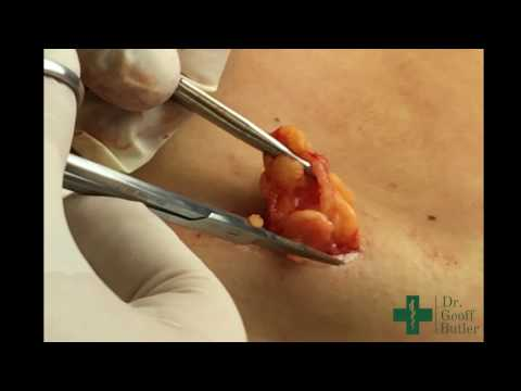 Removal of a Lipoma from the Lower Back