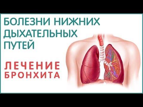 Бронхит, пневмония, плеврит, бронхиальная астма. Как лечить. Фролов Ю.А.