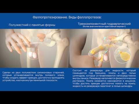 Сколько стоит молот тора капли в украине