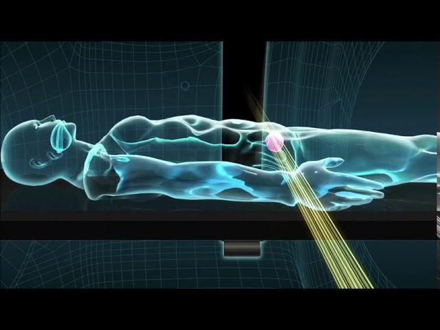 動画2)前立腺がんの治療の様子(アキュレイ株式会社提供)